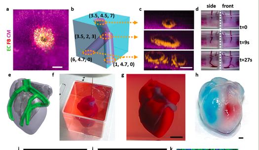 世界上首顆3D列印心臟問世!有血有肉會跳動