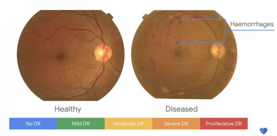 开发AI医疗「鹰眼」!Google投资关键应用,提早一年发现癌症病变