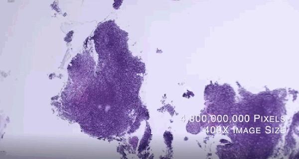 圖3-雲象科技高解析病理影像達十億以上畫素_截自國網中心影片.png